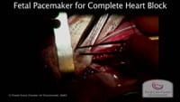 Watch: Fetal Pacemaker for Complete Heart Block.