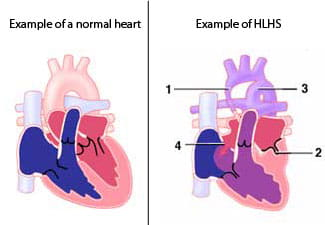 An illustration of hypoplastic left heart syndrome.