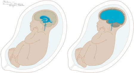 An illustration of hydrocephalus.