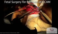 Watch: Fetal Surgery for Removal of Congenital Pulmonary Airway Malformation / CPAM.