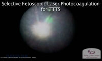 Watch: Selective Fetoscopic Laser Photocoagulation for Twin-Twin Transfusion Syndrome.