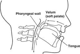 Velopharyngeal