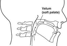 Velopharyngeal Function and Dysfunction, VPI Clinic