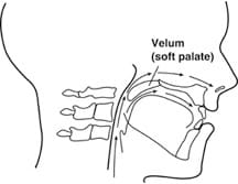 velopharyngeal function and dysfunction vpi clinic
