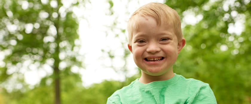 An image of a Down syndrome patient.